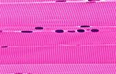 Skeletal muscle,light micrograph
