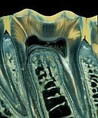Tooth,light micrograph
