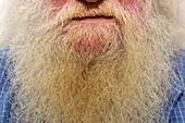 Nicotine staining on beard
