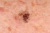 Post-inflammatory skin pigmentation