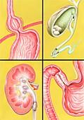 Digestive-excretory disorders,artwork