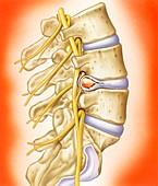 Slipped intervertebral disc,illustration