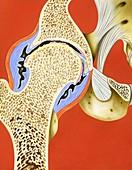 Hip joint inflammation,illustration