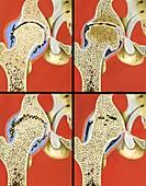 Hip joint degeneration,illustration