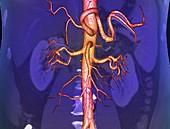 Abdominal aorta,3D CT scan