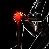 Knee pain,artwork