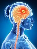Tumour in the brain,artwork