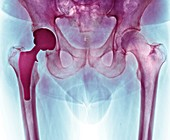 Total hip replacement,X-ray