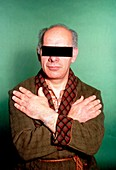 Clinical photo of man suffering from acromegaly