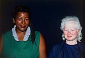Albino woman next to a black woman