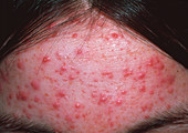 Acne on forehead