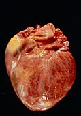 Heart in gigantism
