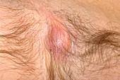 Underarm abscess
