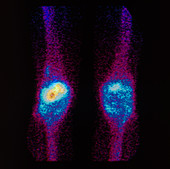 F/col gamma scan of a knee affected by arthritis