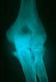 Osteoarthritis of elbow