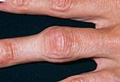 Arthritic finger joint
