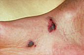 Kaposi's sarcoma on the foot of an AIDS patient