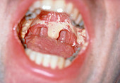 Mouth of an AIDS patient showing oral candidiasis