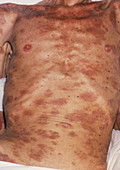 Seborrhoeic dermatitis & emaciation due to AIDS