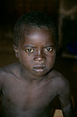 Young child with AIDS