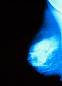 Mammogram normal mature breast (aged 40-45 years)