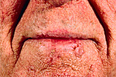 Basal cell carcinoma on a man's lip