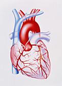 Artwork showing atherosclerosis of coronary artery