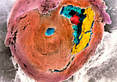 Colour SEM of atherosclerosis in coronary artery