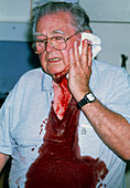 Bleeding due to warfarin