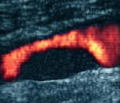 Atheroma plaque,Doppler ultrasound