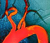 Atheroma plaque,X-ray