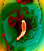 Abdominal aortic aneurysm,CT scan