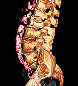 Atheroma plaques,CT scan