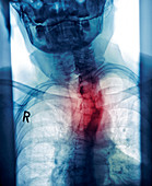 Curved spine,X-ray