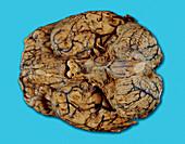 Brain with meningitis