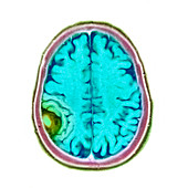 Meningioma tumour,MRI scan