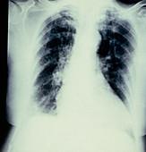 Chest X-ray showing bronchopneumonia