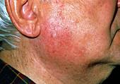 Inflamed salivary gland