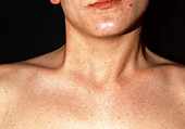 Torticollis in the neck of a 20 year old man
