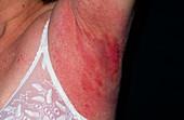 Allergic reaction to armpit deodorant