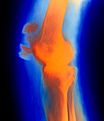 Coloured X-ray image of a fractured kneecap