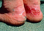 Blister on heel due to ill-fitting walking boot