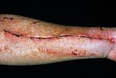 Vein removal scar