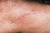 Scar on a fractured leg