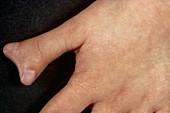 Abnormal thumb