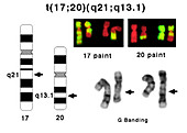 Translocation between chromosomes 17 and 20