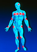Male figure depicting pain points in fibromyalgia