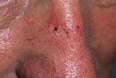 Seborrhoeic wart treatment
