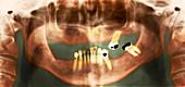 Loss of teeth,X-ray
