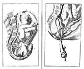 Childbirth illustrations